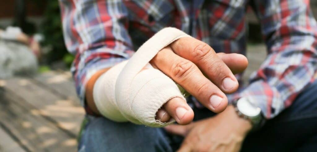 Boxers fracture